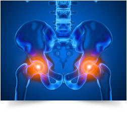 МРТ тазобедренного сустава
