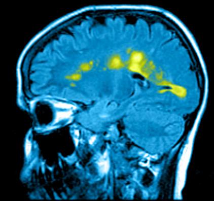 МРТ рассеянного склероза